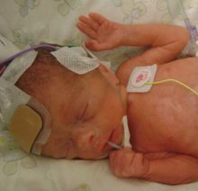 Hypotension in the Preterm Infant